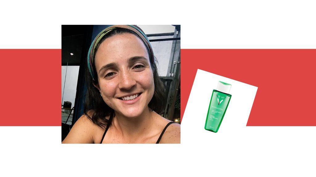 Daniela-bernardi-acne-adulta-tonico-facial-vichy
